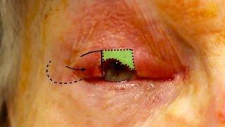 Live Surgery: Upper Eyelid Reconstruction - Tenzel Flap