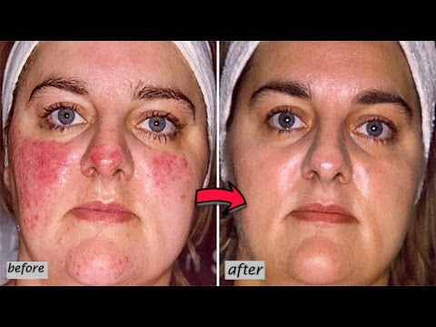 Video How to Get Rid of Rosacea | Top 10 Home Remedies for Rosacea