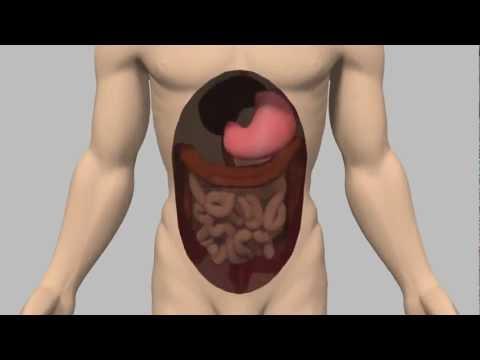 Appareil pour le traitement du diabète insunorm carré 100