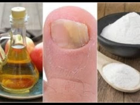 El tratamiento del hongo de las uñas a los médicos