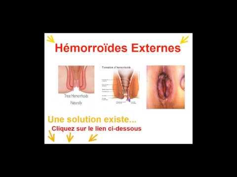 La clinique selon le traitement de la varicosité à moskve
