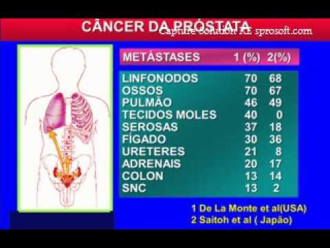 Massaggio prostatico e ai testicoli