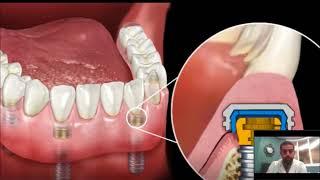 Dental Implant Overdenture | Snap-In Dentures