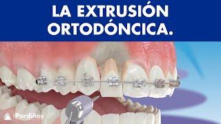 Extrusión ortodóncica © - Clínica Dental Pardiñas