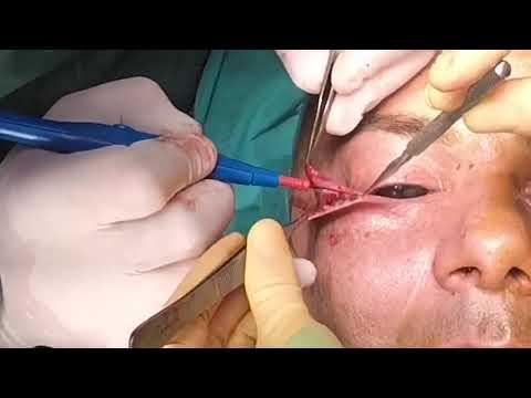 Face mask para sa acne ng itlog protina
