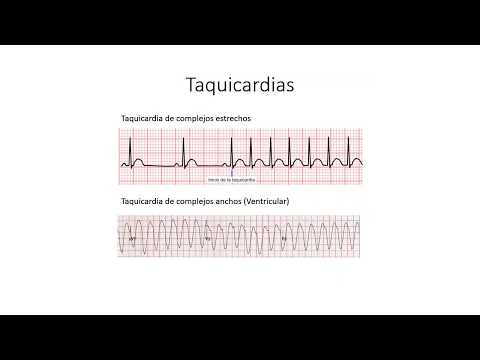 Hipertensão devido a amigdalite