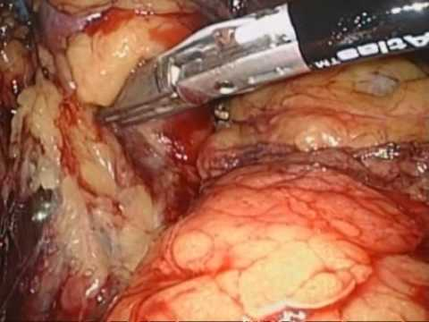 Laparoscopic Nephrectomy - Transvaginal Approach
