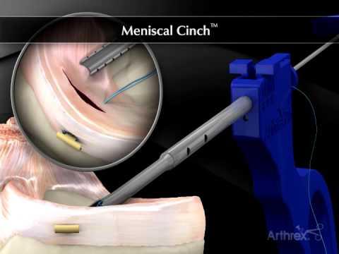Durerile articulare la genunchi și inferioare