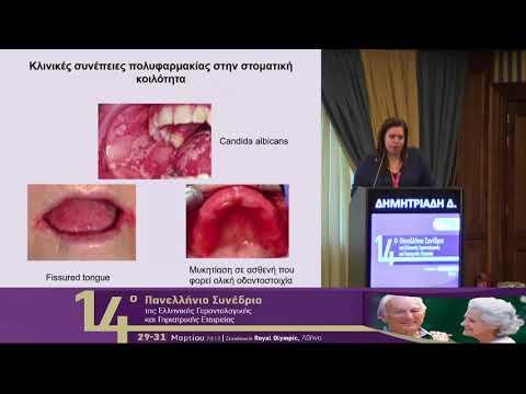 Δημητριάδη Δ. - Οι επιπτώσεις της πολυφαρμακίας στην στοματική κοιλότητα των ηλικιωμένων
