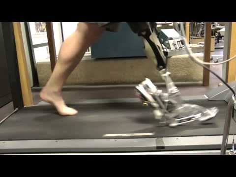 This Prosthetic Foot And Ankle Move With Incredibly Life-Like Motions