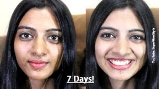 7 Day Skin Care Challenge with Herbalife  (by superwowstyle)