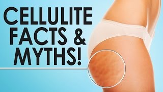 Is Cellulite Normal? Cellulite FACTS and MYTHS