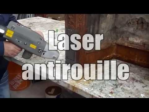 La coagulation gratuitement laser de la rétine de loeil