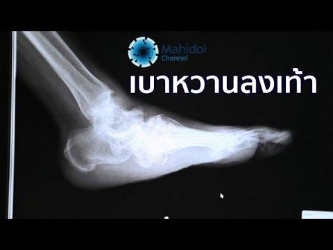 Bursitis กระดูกของนิ้วเท้าใหญ่