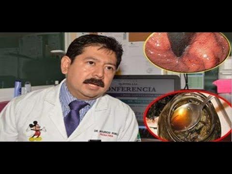 Hipertension sistollë diastolic