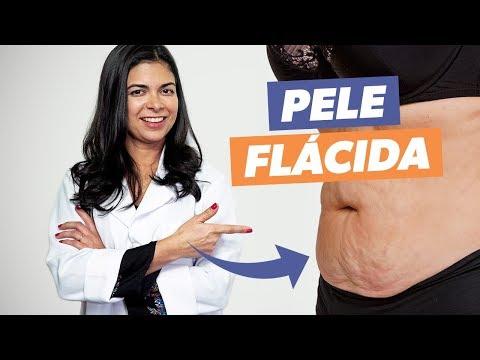 Imagem ilustrativa do vídeo: COMO ACABAR COM A FLACIDEZ