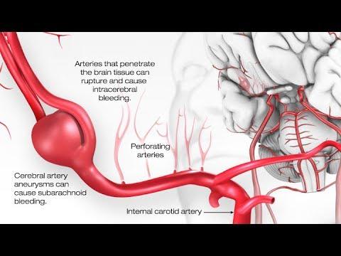 Penebalan operasi penis