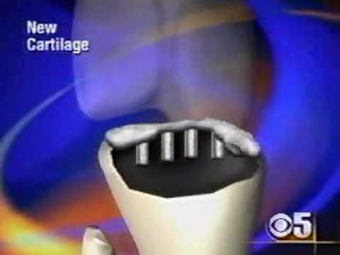 Injecții pentru ameliorarea durerii în articulația genunchiului