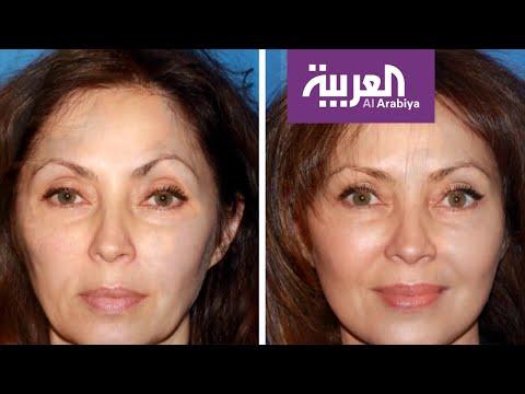 العرب اليوم - شاهد: أبرز الإجراءات التجميلية لتخفيف آثار العمر والتقدم في السن