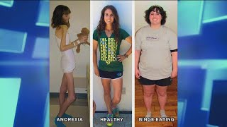 How an Anorexic Can Become a Binge Eater