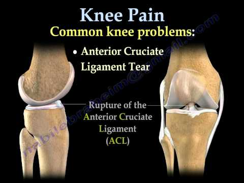 Video Knee Pain , common causes- Everything You Need To Know - Dr. Nabil Ebraheim