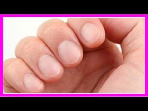 Die Lacke für die Behandlung der Nägel