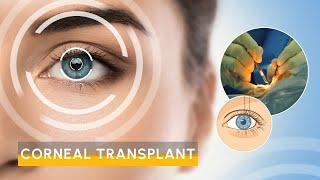 Video Cornea transplant