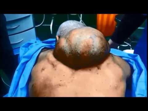 Ízületek fájnak és a bőr viszket