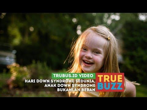 Pesan Untuk Orangtua di Hari Down Syndrome se-Dunia