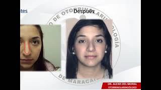 Rinoplastia - Centro De Otorrinolaringologia De Maracaibo  C.a