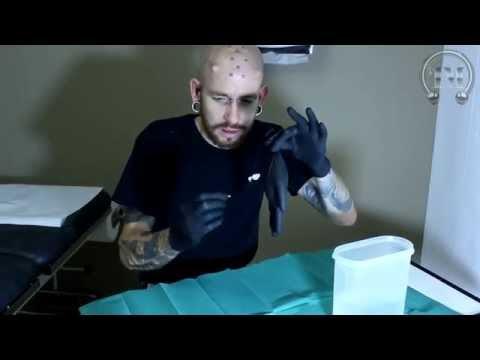 Bestrahlung für Prostatakrebs