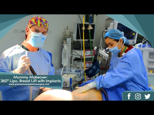 Mommy Makeover: 360° Liposuction, Breast Lift with Implants