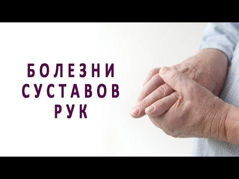 Что нужно знать о болезнях суставов рук