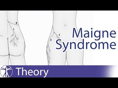 Deformált artrózis a könyökízület hogyan kell kezelni