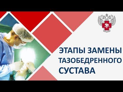 🏃 Замена тазобедренного сустава и реабилитация после. Тазобедренный сустав замена видео. 12+