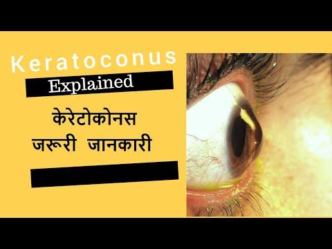 keratoconus látás-helyreállító műtét látásélesség minősége