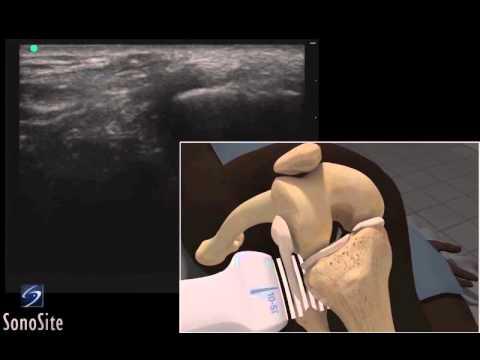 Trattamento metostaz della colonna vertebrale