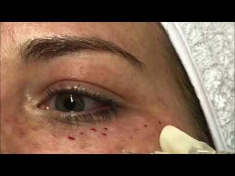 Foundation cream para sa mamantika balat na may freckles