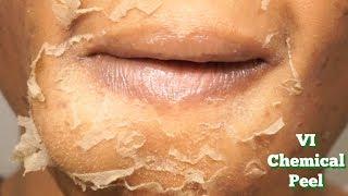 CHEMICAL PEEL Full Process   Procedure   Peeling   Before & After