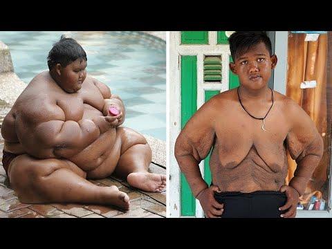 Clk perdita di grasso