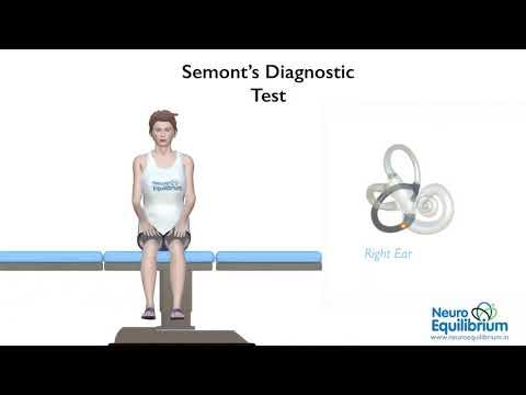 Videos from Neuroequilibrium Vertigo Clinic