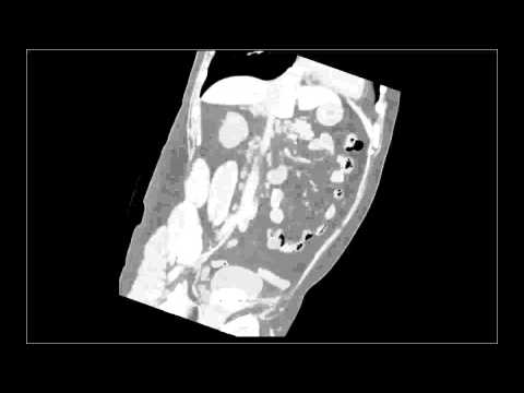 Vitaprost e confrontare prostatilen
