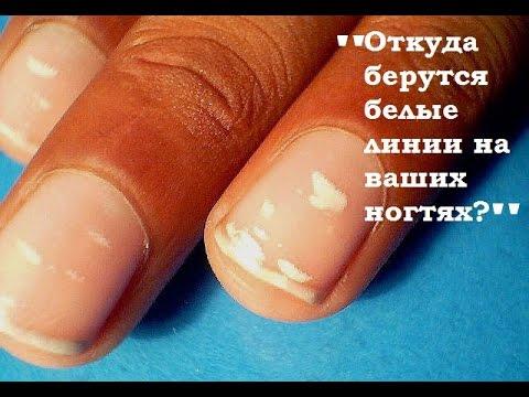 Все обо всем - Почему появляются белые пятна или линии на ваших ногтях?