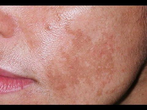 До и после крем от пигментных пятен на лице