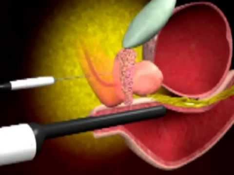 Tasso di analisi cane della prostata