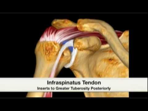 Artrosi della risonanza magnetica dellanca