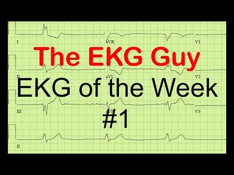 EKG of the Week #1