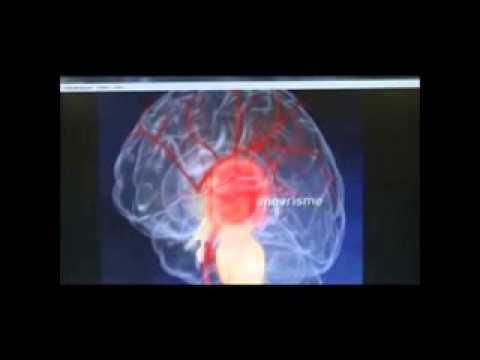 Le cours et le traitement de lhypertension chez les personnes âgées