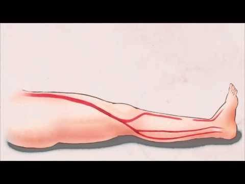 บีบอัดบนเท้าบวมมีเส้นเลือดขอด