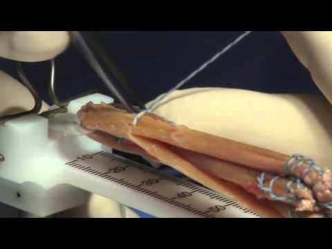 Rekonstrukcja więzadła krzyżowego przedniego z wykorzystaniem ścięgna udowego.